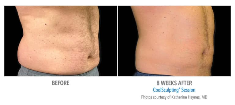 Male-Abdomen-Photo-Courtesy-of-Dr.-Haynes-Edmonton-Dermatology