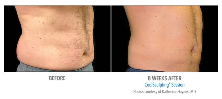 Male-Abdomen-Photo-Courtesy-of-Dr.-Haynes-Edmonton-Dermatology