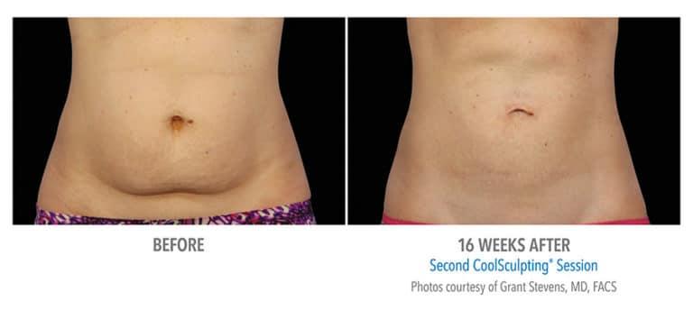Female-Abdomen-DrStevens-Edmonton-Dermatology