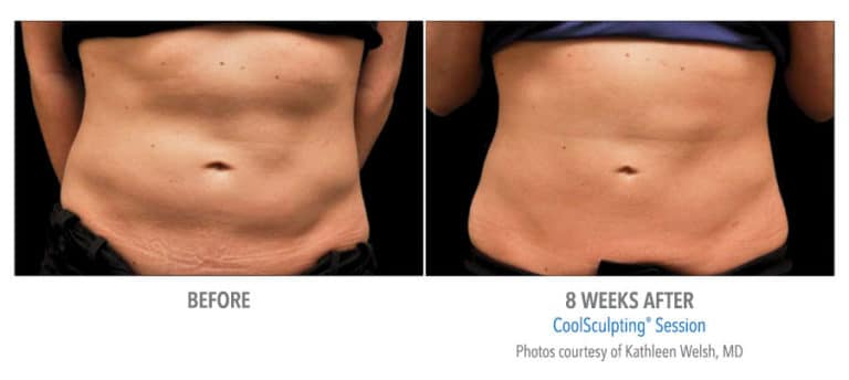 Female-Abdomen-DrWelsh-Edmonton-Dermatology