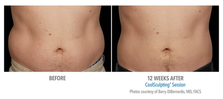 Male-Abdomen-Photo-Courtesy-of-Dr.-DiBernardo-Edmonton-Dermatology