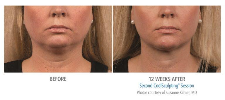 Female-Submentum-Photo-Courtesy-of-Dr.-Kilmer-Edmonton-Dermatology