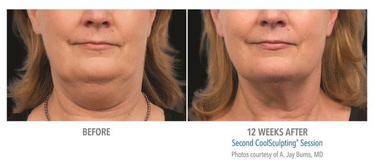 Female-Submentum-Photo-Courtesy-of-Dr.-Burns-Edmonton-Dermatology