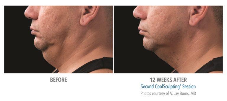 Male-Submentum-Photo-Courtesy-of-Dr.-Burns-Edmonton-Dermatology
