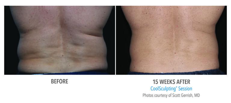 Male-Flank-Photo-Courtesy-of-Dr.-Gerrish-Edmonton-Dermatology