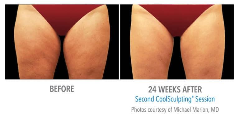 Female-Inner Thigh-DrMarion-Edmonton-Dermatology
