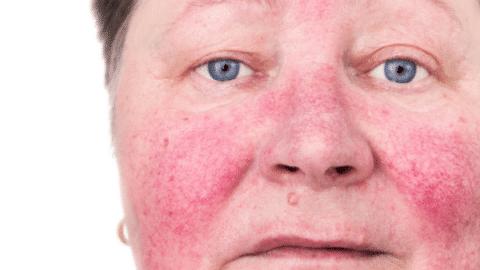 Edmonton-Dermatology-Rosacea-480x270