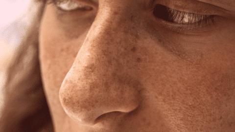 Edmonton-Dermatology-Sun-Damage-Pigmantation-Caucasian-480x270