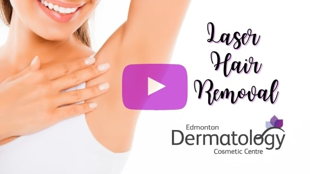 Laser Hair Removal in Edmonton - Watch The Video Here