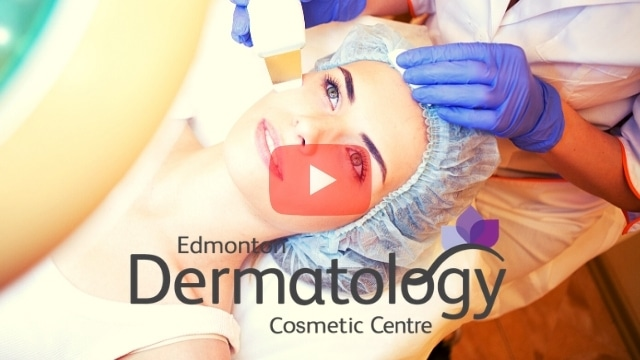 Laser Hair Removal in Edmonton _ Article Image 030421